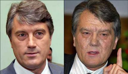 Viktor Yushchenko - August 2004 versus October 2004 <font size=-2>(Source: AFP)</font>