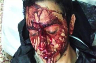 Protester allegedly beaten after appearing on al-Jazeera