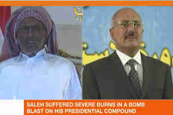 Ali Abdullah Saleh before (right) and after (Al-Jazeera)