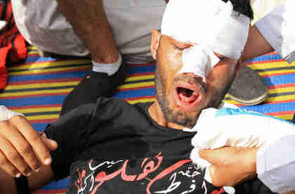 A young protester wounded by army attacks on Friday (Al-Ahram)