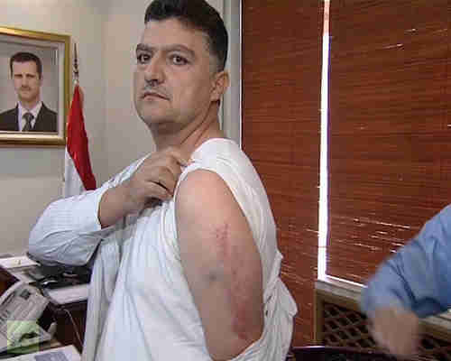 Jasem Kaser, engineer on the  intercepted Syrian Air passenger plane, showing where he was beaten. (AFP)