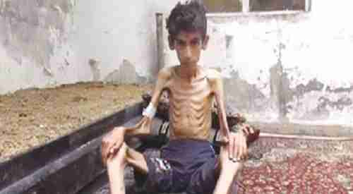 Starving boy found by aid workers in Madaya, Syria
