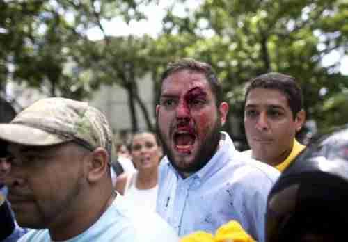Venezuelan opposition lawmaker Juan Requesens after being bloodied by a Maduro supporter (AP)